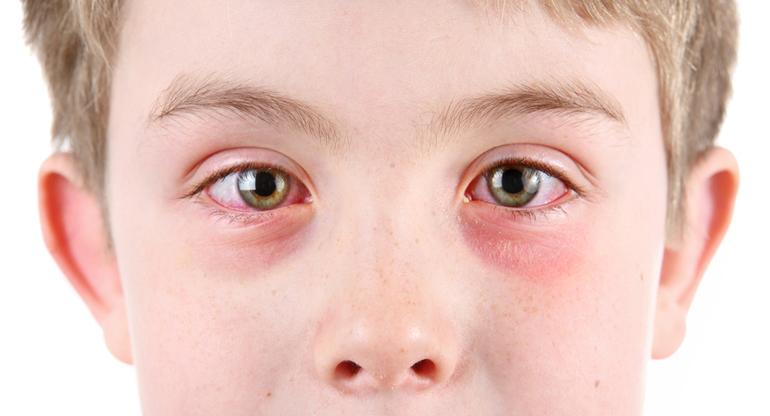 что делать если покраснел глаз от линз