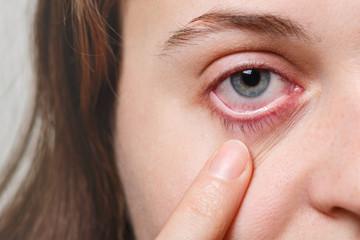 что делать если покраснели глаза от линз