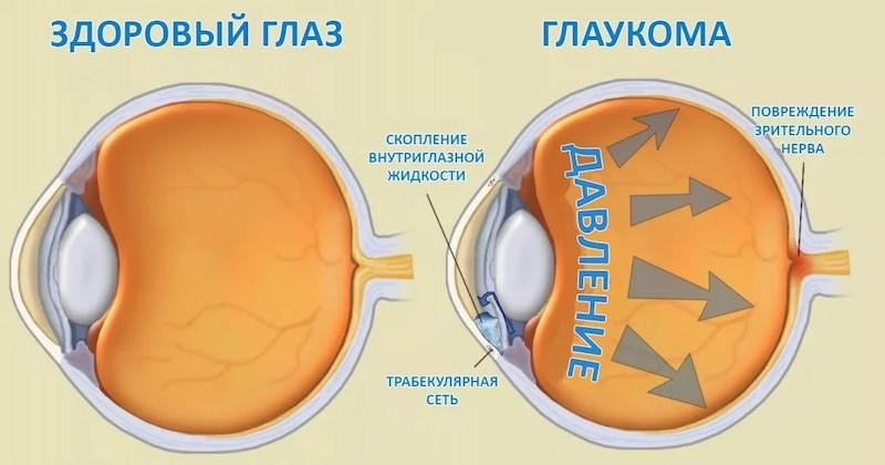 глаукома и линзы