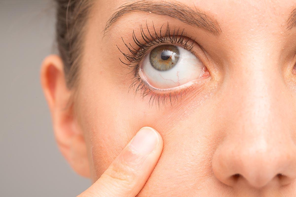 симптомы застрявшей линзы
