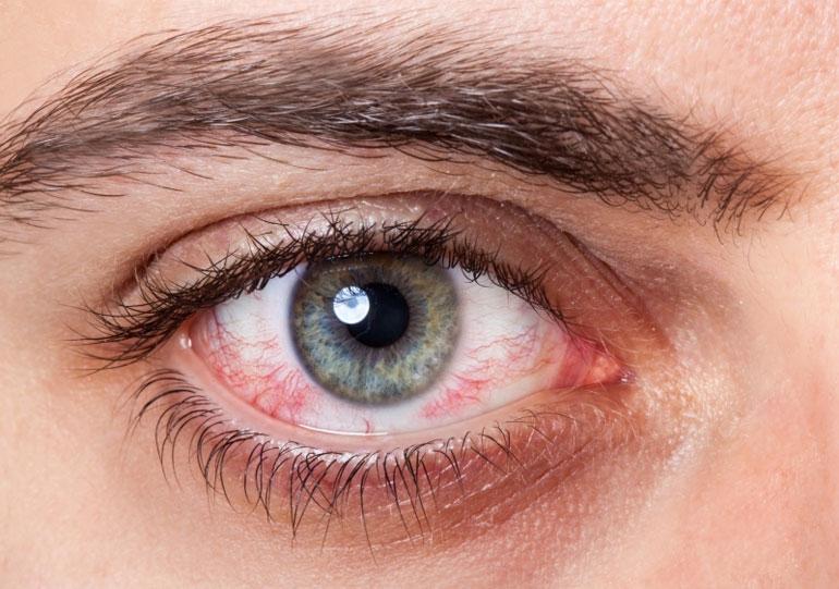 аллергия и линзы