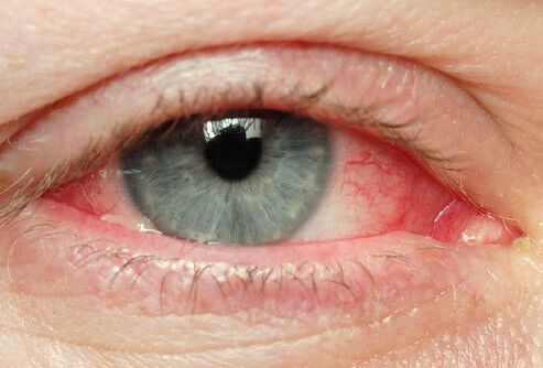 причины покраснения глаз от линз
