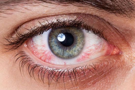 причины покраснения глаз линз